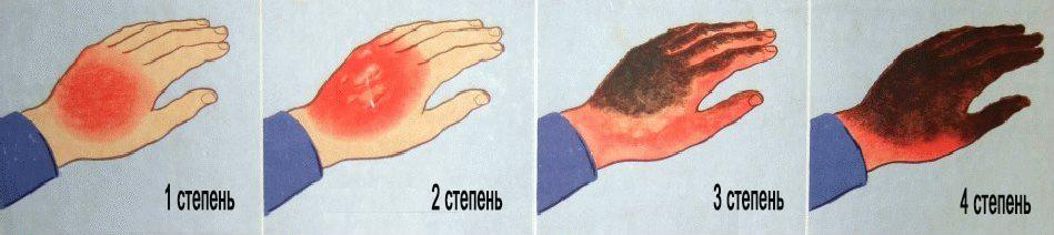 obzhegla-palets-kak-snjat-bol