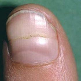 Руки расскажут о здоровье. Диагностика по ногтям